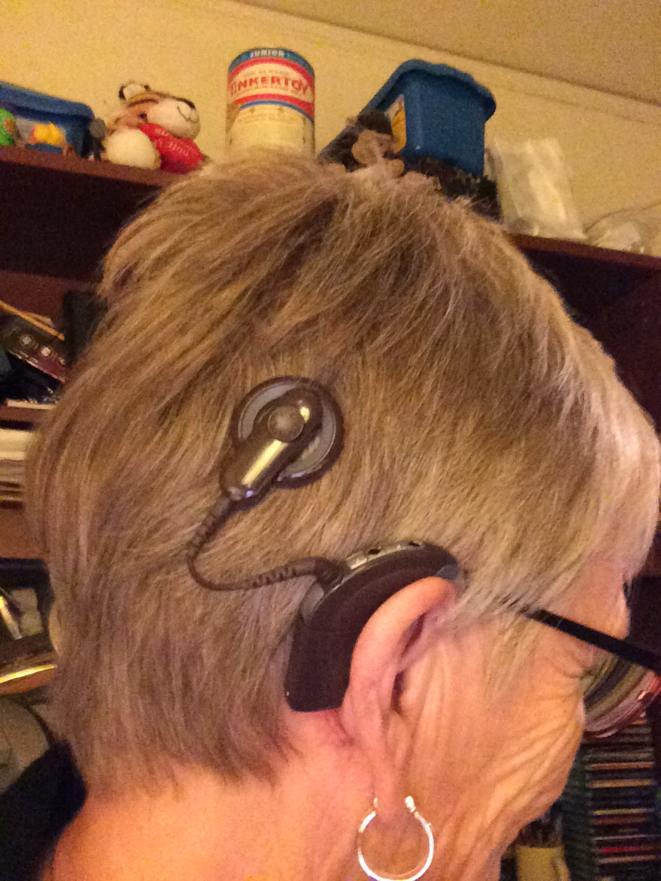 Cochlear Implant Update